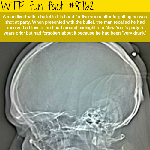 A man lived with a bullet in his head for 5 years - WTF fun facts
