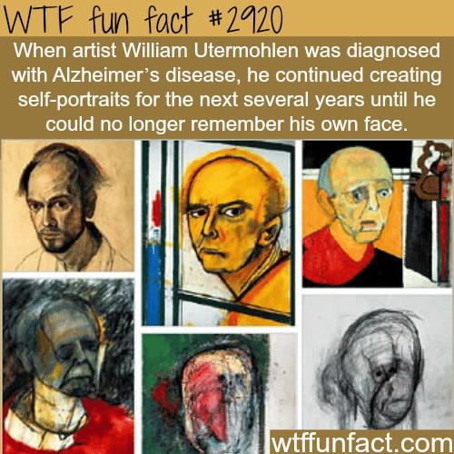 Artists William Utermohlen -WTF fun facts