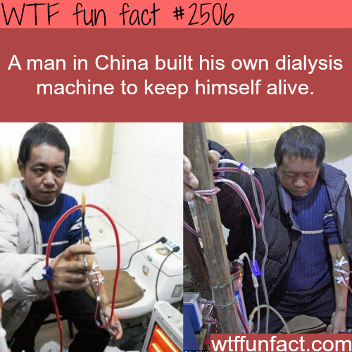 Dialysis machine built by a Chinese man -WTF funfacts