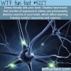 how stress can kill your brain wtf fun facts