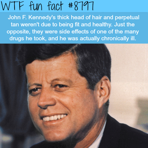 John F. Kennedy - WTF fun facts