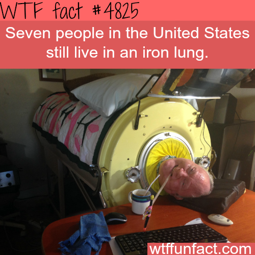Seven people are living in iron lungs in the USA - WTF fun facts