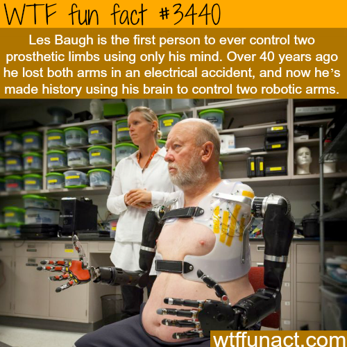 The first man to control prosthetic limbs using his mind -  WTF fun facts
