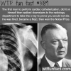 the first person to perform cardiac