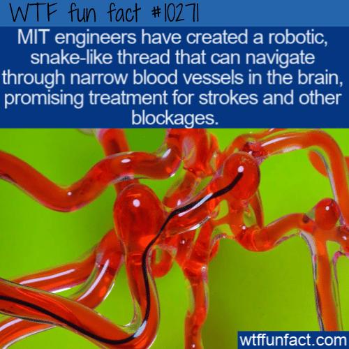 WTF Fun Fact - Robotic Treatment