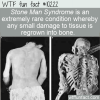 WTF Fun Fact – Stone Man Syndrome