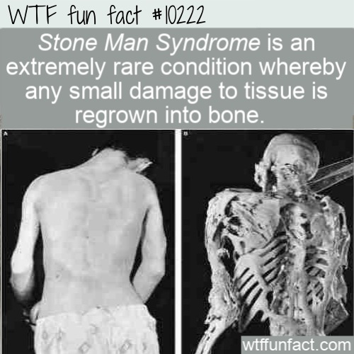 WTF Fun Fact - Stone Man Syndrome