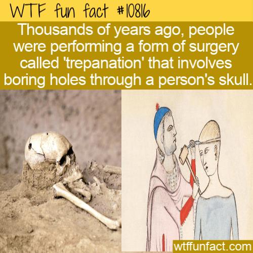 WTF Fun Fact - skull Hole Surgery