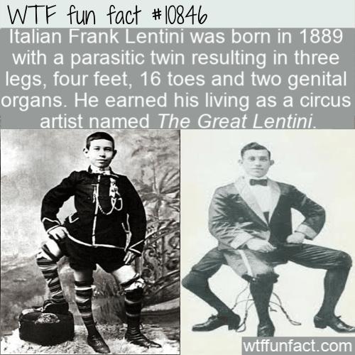 WTF Fun Fact - Artist With Three Legs