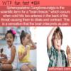 WTF Fun Fact – Sphenopalatine Ganglioneuralgia